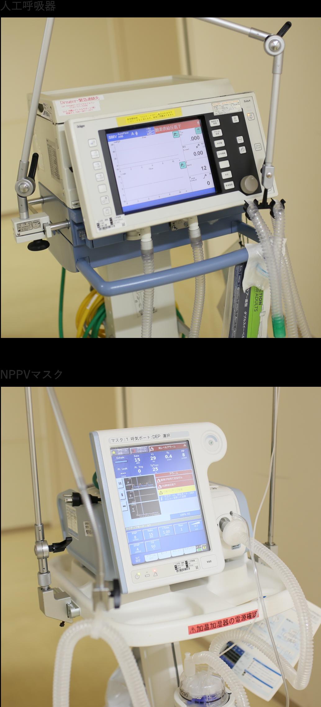 重症呼吸不全(ARDS)のイメージ