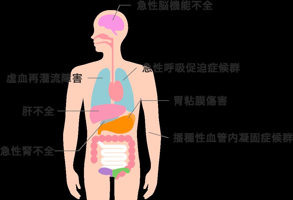 多臓器不全のイメージ1