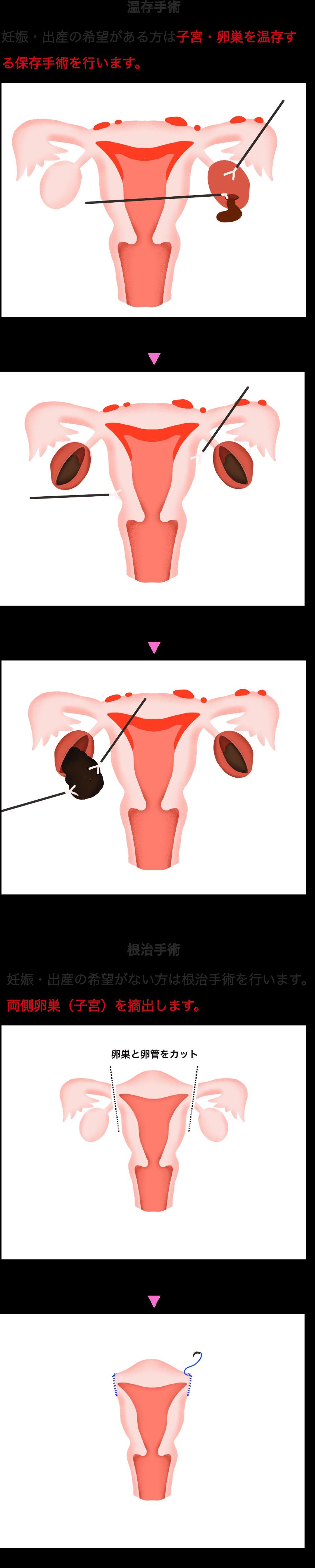 子宮 卵巣 全 摘出