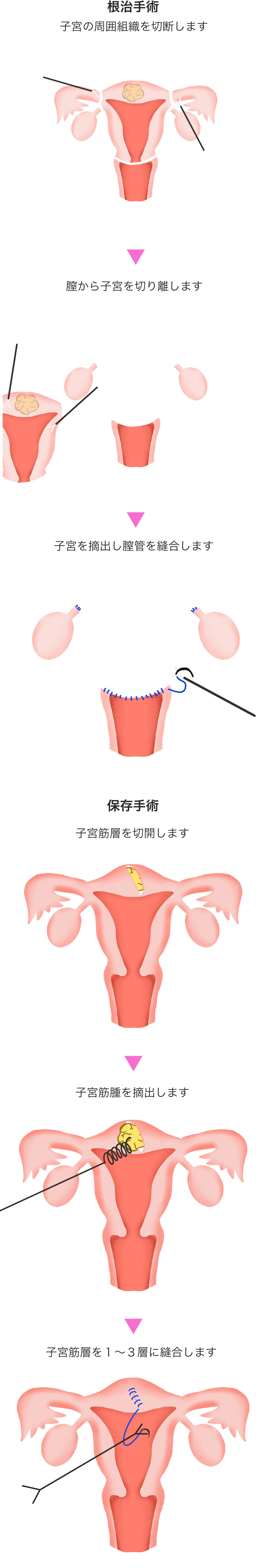 リスク 手術 子宮 筋腫