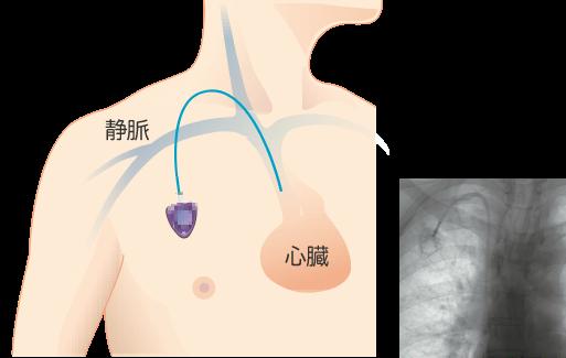 内頸動脈からの手術方法