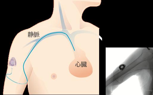 腕からの手術方法